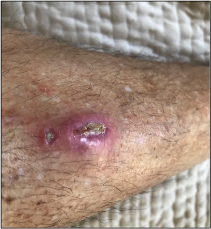 Wound 1 week after foreign body removal