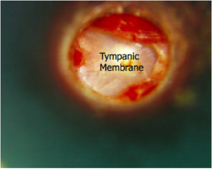 With exostosis removed, Tympanic Membrane is now visible