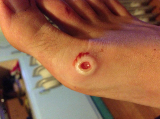 sea ulcer on foot
