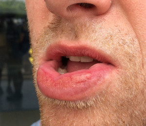 Surfer's Lip