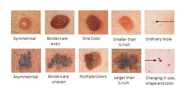 melanoma photo