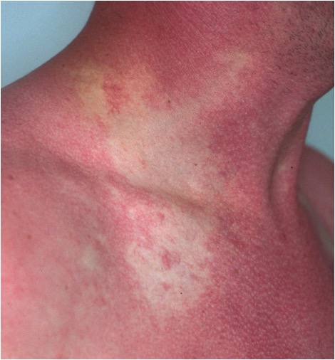 Scombroid Rash: Note location on the upper chest, face and neck. It is confluent and not raised.