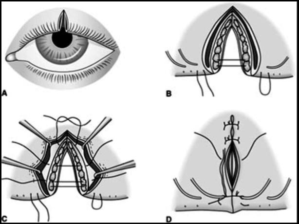 Surgical technique for marginal lid laceration repair
