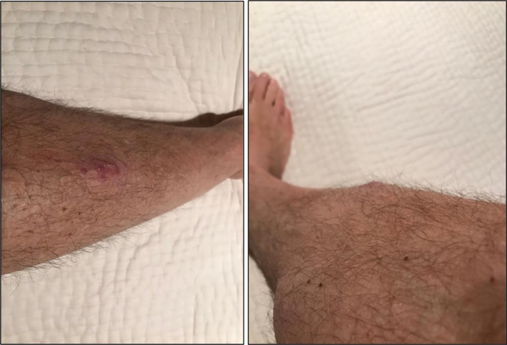 Wound 6 months after injury