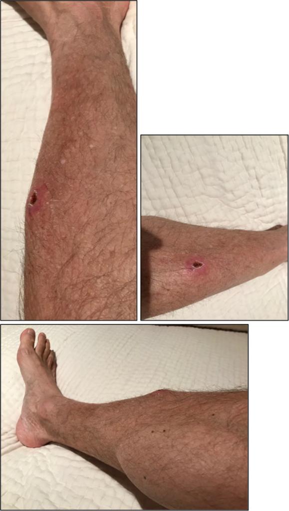 Non-healing injury