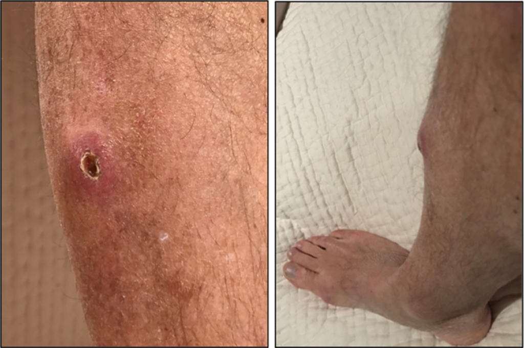Wound 2.5 months after injury and 3 weeks after wound exploration