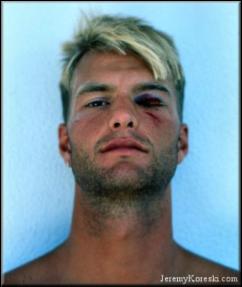 Acute Injuries in Surfing
